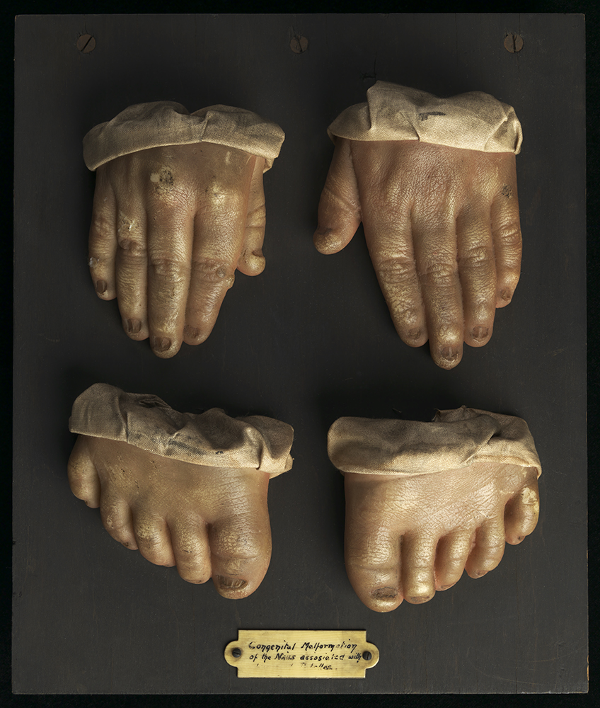 Wax moulage of hands and feet, early 20th century. This moulage shows a congenital malformation of the nails.