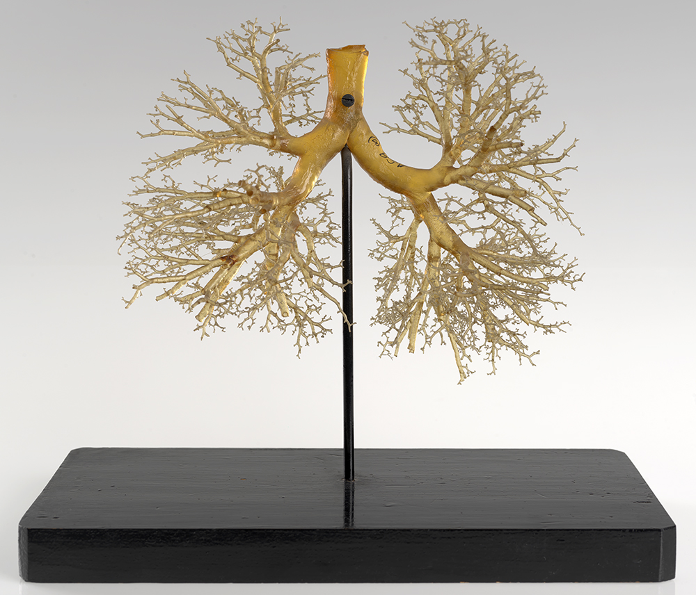 Mounted resin cast of lungs